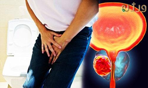 سرطان پروستات در مردان و درد در ناحیه تناسلی