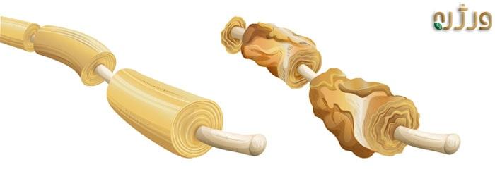 از بین رفتن غلاف میلین در بیماری مالتیپل اسکلروزیس