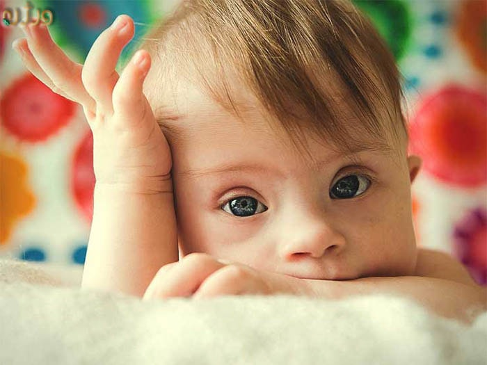 کودک مبتلا به تریزومی۲۱