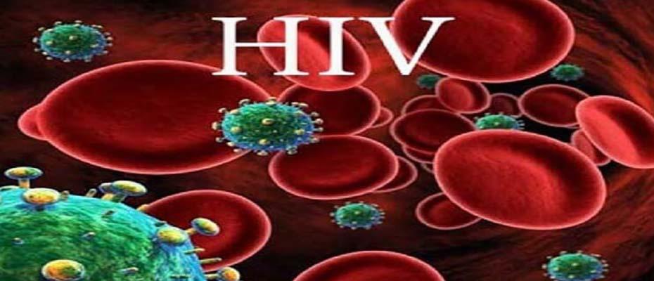 ویروس ایدز