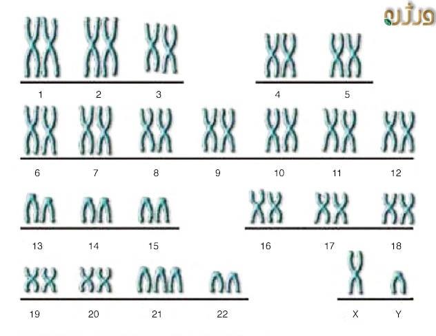 سه جفت کروموزوم شماره 21